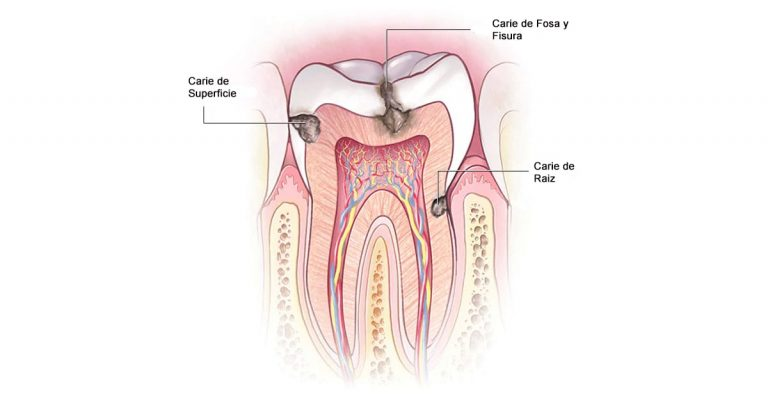 Tipos Caries